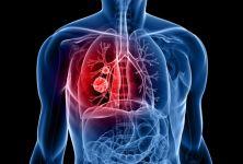 Rakovina - zákeřné a obávané onemocnění